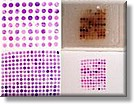 Tissue Array (Microarray)